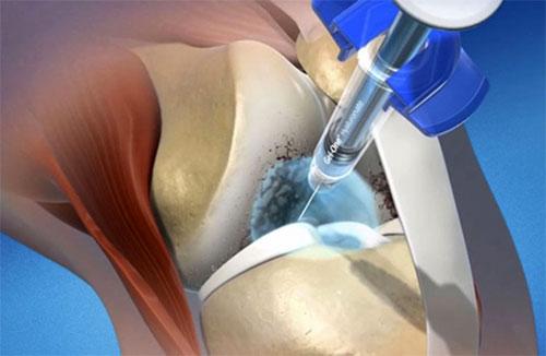 Гиалуроновая кислота как способ лечения заболеваний суставов