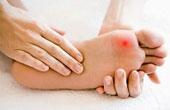 Методы лечения заболеваний стопы
